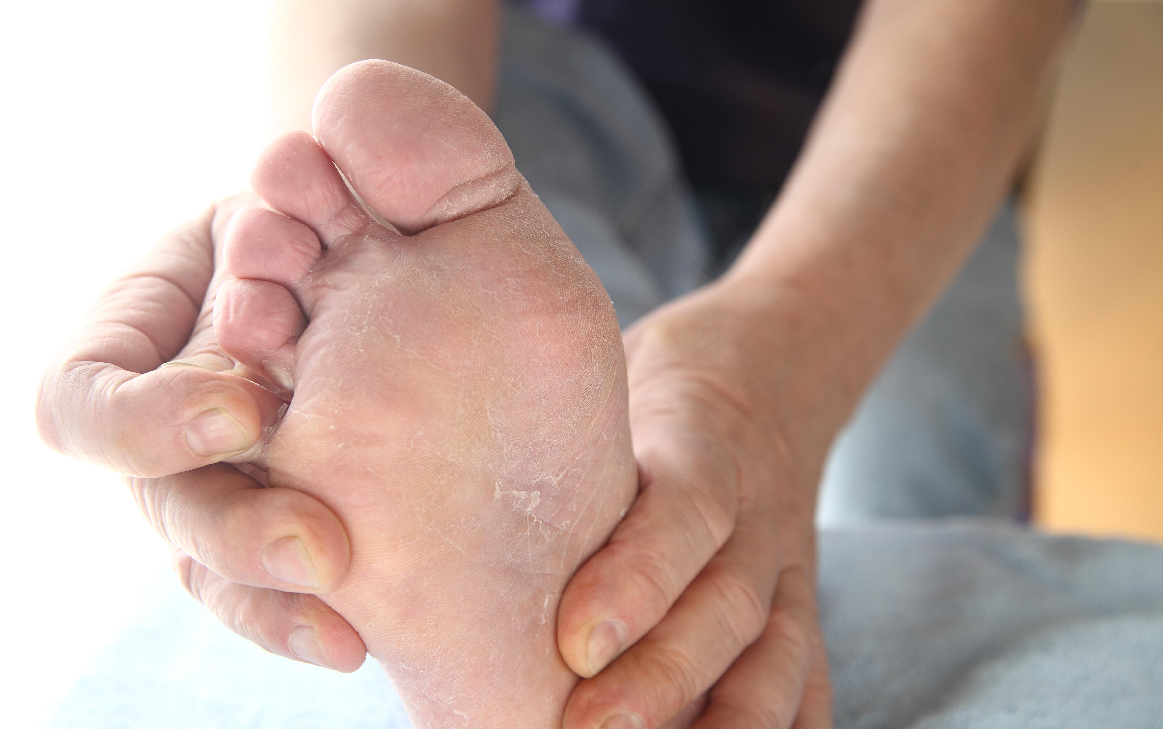 Fußgeruch Schweißfüße Fußpilz
