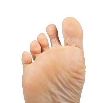 Fuß mit Bläschen