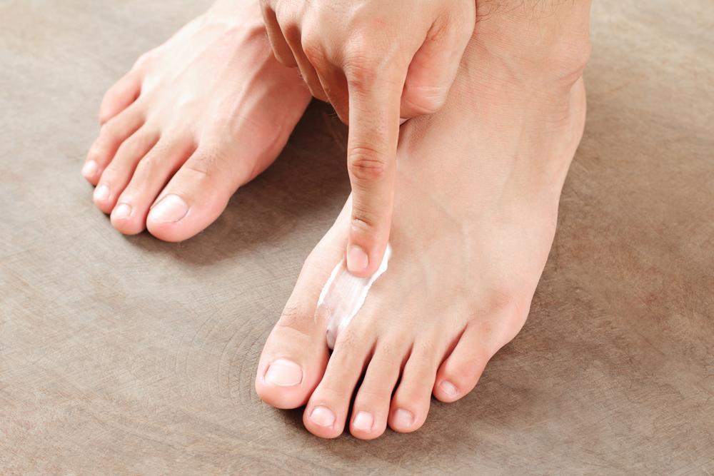 Salbe gegen Fußpilz